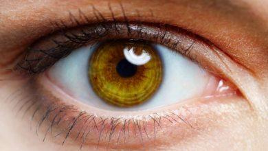 صورة يسبب فقدان البصر عند كبار السن.. تعرف على الضمور البقعي