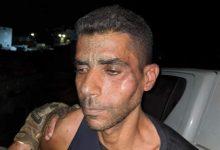 صورة الاحتلال ينهال بالضرب على الزبيدي