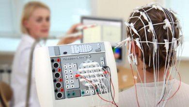 صورة ماذا تعرف عن مخطط كهربية الدماغ؟